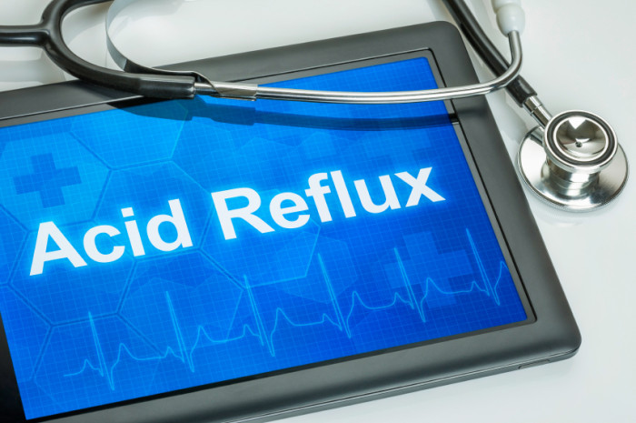 7 Home Remedies For Acid Reflux