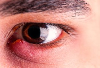 Stye Home Remedies From Your Home and Gardens